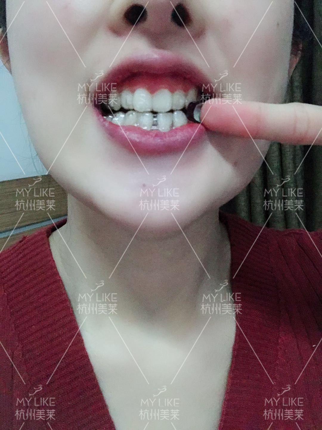 效果越来越好,我的一个朋友为了省钱带的是钢牙的牙套,拔了4颗牙,花了一万五,拔完牙饭都吃不了,脸都肿了,看着真受罪,而且还要带一年多,其实真的没必要,我这个隐适美也才5万多,戴起来不影响美观慢慢变美,而且从我带牙套开始,只是有一点酸酸的感觉,一点都不痛,不影响工作,和别人打交道也不会因为戴着牙套而感觉自卑,我那个朋友现在跟别人说话都不敢看他的眼睛,总感觉别人会注意到自己的牙齿,虽然省了钱,后期也会漂亮,但这一年之内,恐怕她连恋爱都不敢谈了吧!