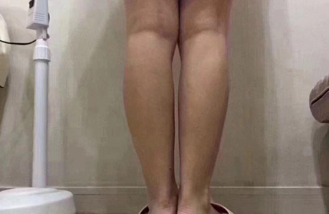 让腿变直变长的步骤图