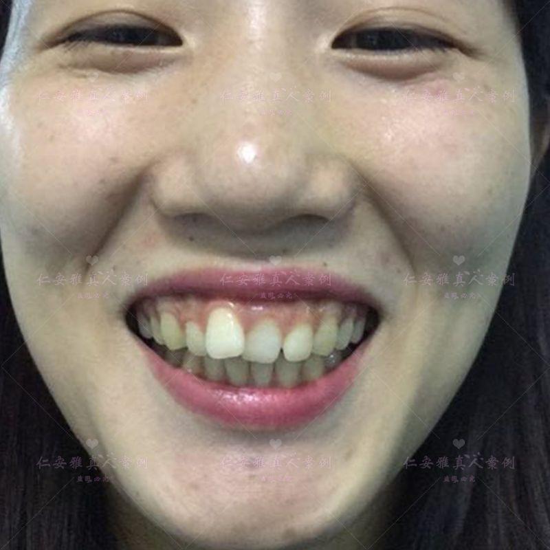 """【顾客术后分享】 我自己也是个学医的,是一个刚出来两三年的护士小渣渣,而今天我是想来写一些,我做牙齿矫正的感受(术前感受)和我了解的牙齿矫正。我的牙齿主要的问题是牙列拥挤,看着很不美观,牙齿也比较黄,小时候刷牙 太偷懒了,没用心,换牙的时候,怕疼,没去拔牙,现在想一下真想打死自己,不然就不会变成这样啦 ,之前就想做牙齿矫正的,但是一直没时间。今年自己找了个整形医院的护士工作,所以就打算在自己工作的医院做了,(我们那也是有牙科的)主要是慢慢的自己看到了别人的效果,改善也很大,去找另一家陌生的牙科医院做,还不如找家自己熟悉的,也了解的医院呢。这样自己也更加的放心,也更安全。我的矫正还要过两三天才能做,自己有点不方便啦,矫正的话 我是打算做半隐型的,因为,爱美的我不想变成""""铁齿铜牙""""  还是做隐形的好,这样不仅美观一点,别人不清楚的还不会知道,这样也不会有一张嘴就看见,自己一嘴""""铁牙""""的尴尬。其实半隐型矫正,还是有其他的好处的,比如,佩戴更加的舒适,托槽的拆卸也更加的方便,内衬的金属槽沟,强固托槽,有助于钢丝的自由滑动,提高治疗效果,所以我不是单纯的看它隐蔽和美观哦,我也是会为实际考虑的哦,现在呢就等着过几天直接做矫正啦 ,做完后我的脸型肯定会改善一点,说不定说更美一点哦,说一下,我工作的医院是深圳仁安雅哦, 你们想了解效果也可以来看我哦(也要等我做完才能看哦)。现在给你们看看术前的图吧,"""