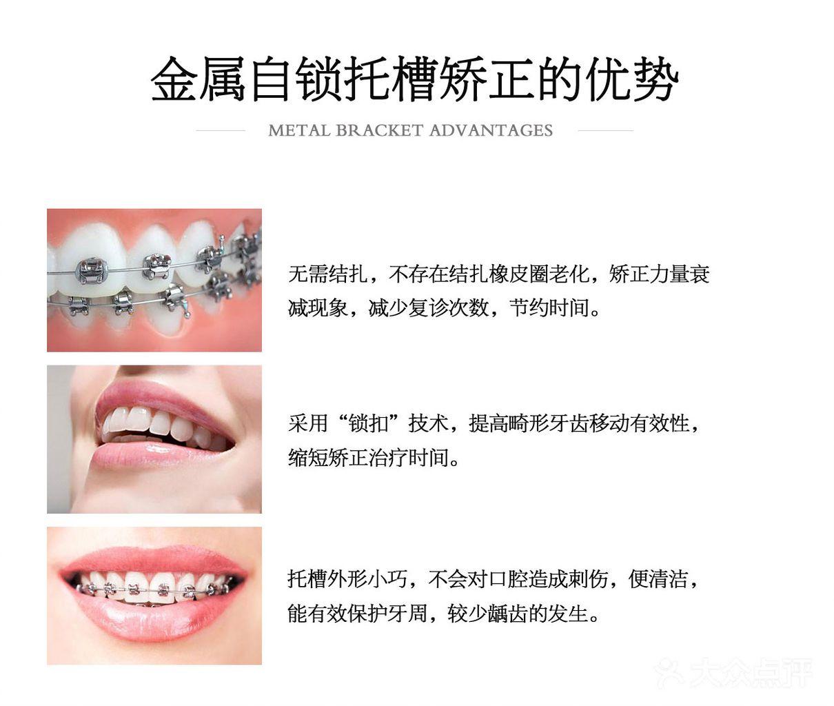 【李医生口腔诊所】畸牙矫正 牙齿矫正  整牙矫正_精彩生活>>丽人时尚>>口腔护理