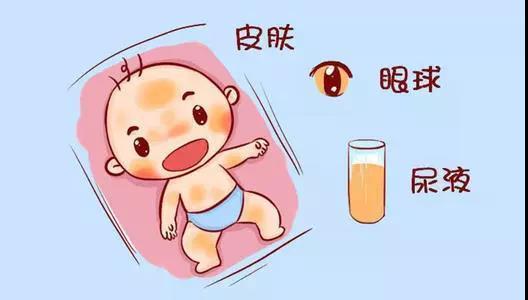 新生儿黄疸,真的那么可怕吗?
