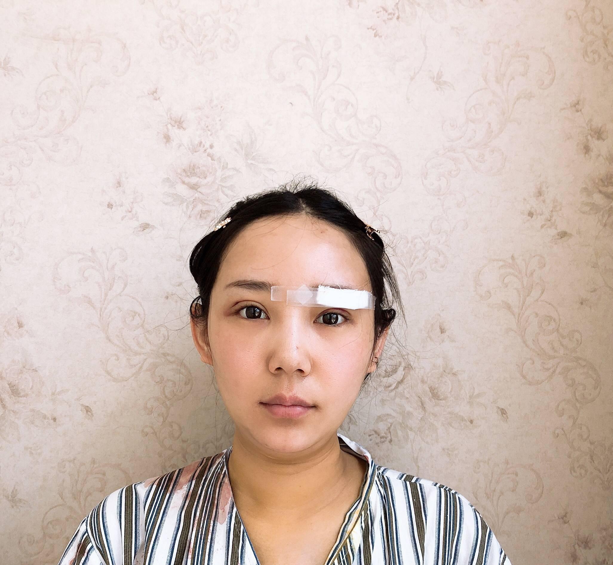 今天是面部吸脂术后一周时间,来院复查后,还调了下眉毛,所以眉毛还缠有白色纱布。 面罩拿下来看看脸部 目前吸脂部位微微有点疼 几乎可以忽略 没有其他不适感觉 照镜子面部确实瘦了一些 但是还有点轻轻肿吧 所以效果还不能明显看到呢 昨天问了医生 说目前是增生期 需要一个月后稳定 总之  没什么特别的影响  还是得忌口 可以洗脸了  期待慢慢变的更好吧。