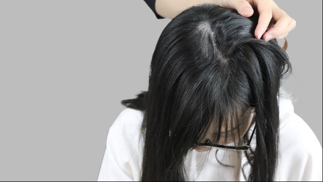 发际线 项目分类:植发养发 植发 头顶加密种植