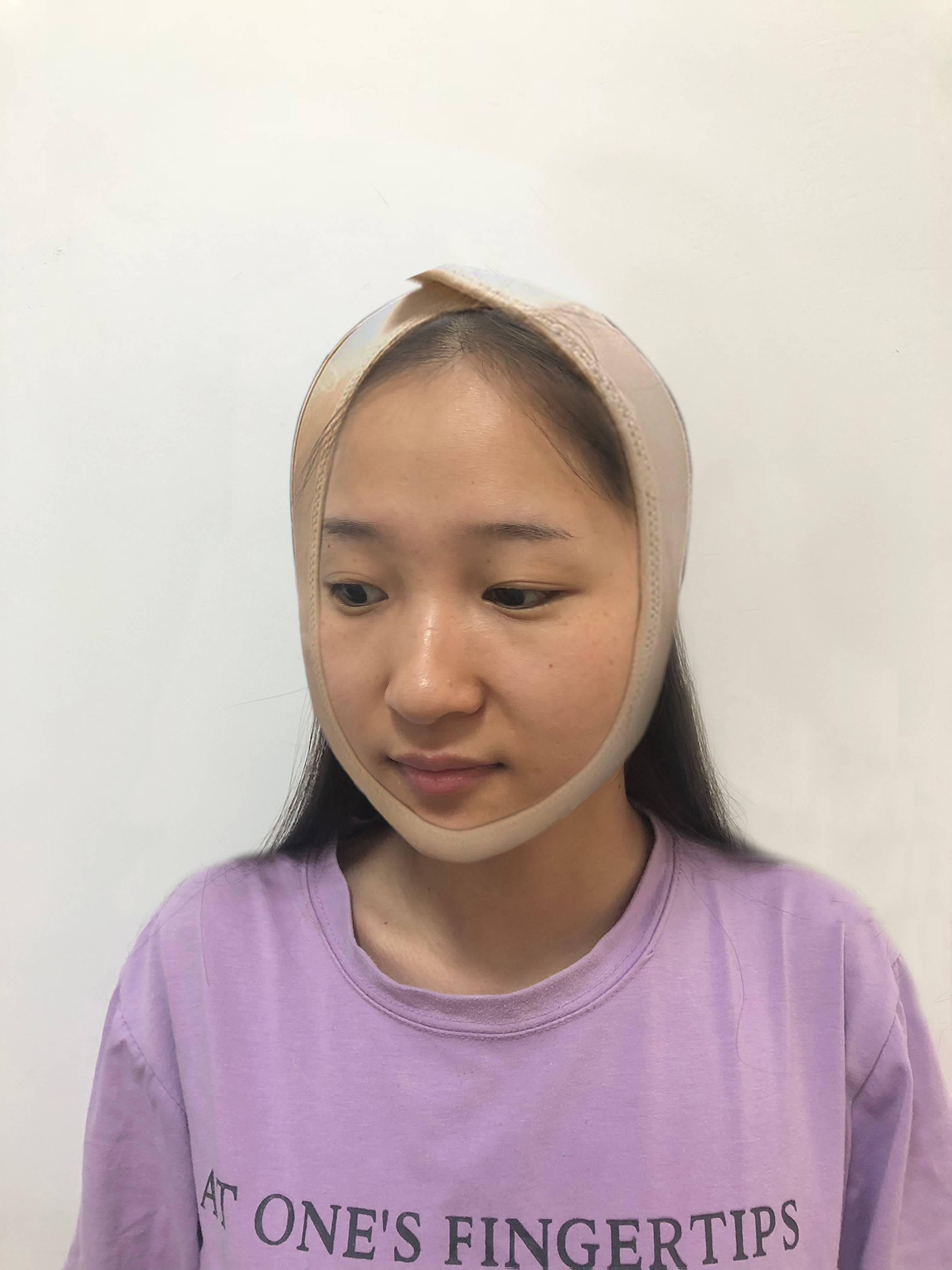 拆完线脸上都是前几天拆纱布的印子,忽然觉得脸上变凉快了,好像重生的感觉,轻轻碰也不疼,拆完头套就会带上头套要塑形,起到更好地固定作用