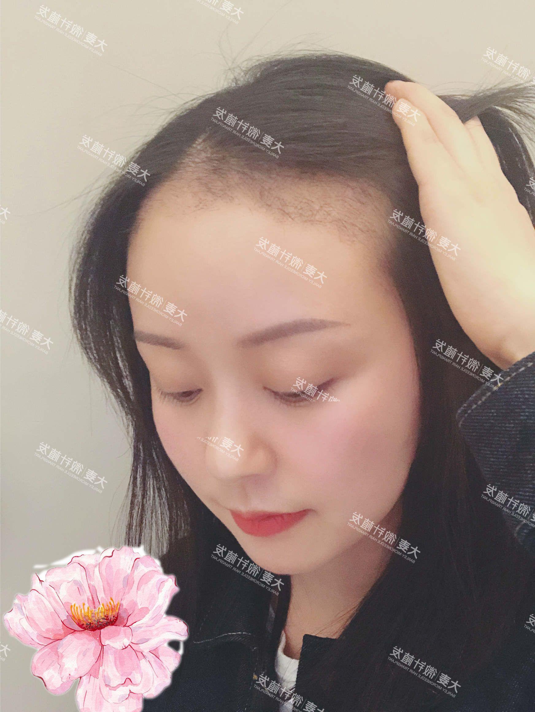 植发手术已经过去1个月啦,现在是不是不一样了?其实女生植发也是有脱落期的,这是头发正常的生长周期,现在我的头发该起来的话看不出来了,但是如果把头发撩起来就可以看出来植上去的发际线在脱落期,已经有一部分的头发掉了,现在看着比较稀疏。 这段时间也是需要休养生息的时间,给毛囊充足的时间生长,等小发茬长出来大概需要2个月左右。 我个人其实不在意的,因为这不是我一个人的状况,植发都是这样的,都有这样的一段过渡期。医生会时刻注意我的情况,仍然提醒我注意饮食注意左心,只有这样才能让头发有一个更好的生长环境。