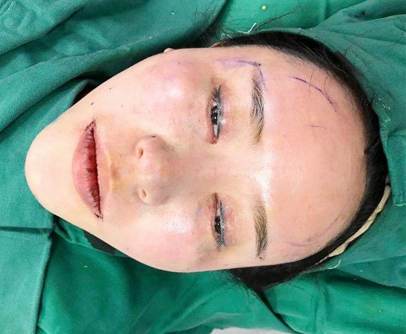 第一次做手术还是有点小紧张的,可能是我心理素质太差了吧~ 前面先是面诊医生,然后确定手术方案,我做的有点多,综合全脸打造来着,包括鼻基底、脂肪填充、假体下巴与微笑唇,不想后面在遭罪,索性一次做完就可以美美的。 做完各项检查后就进去手术了,手术是全麻,打麻药的那会有点疼,后面手术就没什么感觉哈哈,医生手术操作还是很快的,醒来手术已经结束,然后我就在病房休息了。 期间医生来看过我好几次,问我有没有不适什么的,护士也帮我准备了吃的,好贴心呐!目前脸上给我的感觉就是酸胀麻,疼痛实话还好,整体面部情况还是可以的。 后面就等医院回访通知再次复查了,做面填有点好,衣食住行方面没什么大的限制,正常生活就好了!