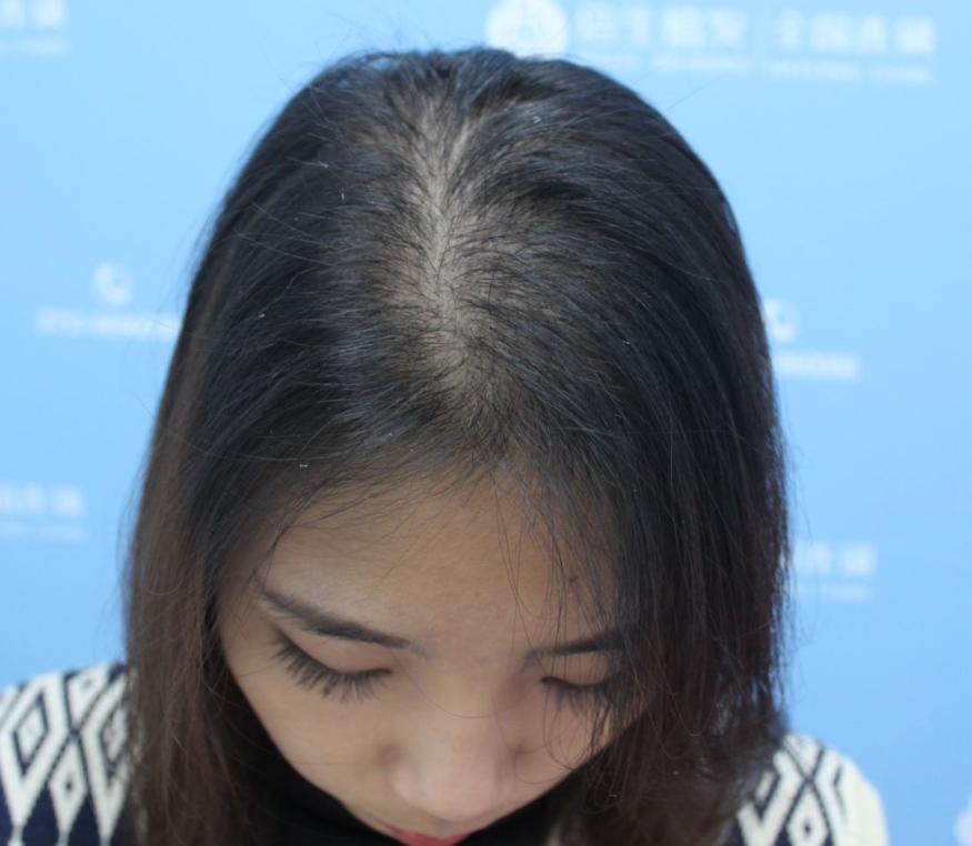 头顶加密种植 项目分类:植发养发 植发 头顶加密种植