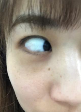 擦了十年的眼霜没啥用,还是手术去眼袋好,一周时间就看不出来了~ ,眼睛不发黄了,眼睛向下看的时候能觉得还是有一点点凹,也正常,毕竟才一周嘛,照镜子的时候发现,黑眼圈好像也好了不少,没有眼袋和泪沟的拖累,年轻了好几岁,好开心 。