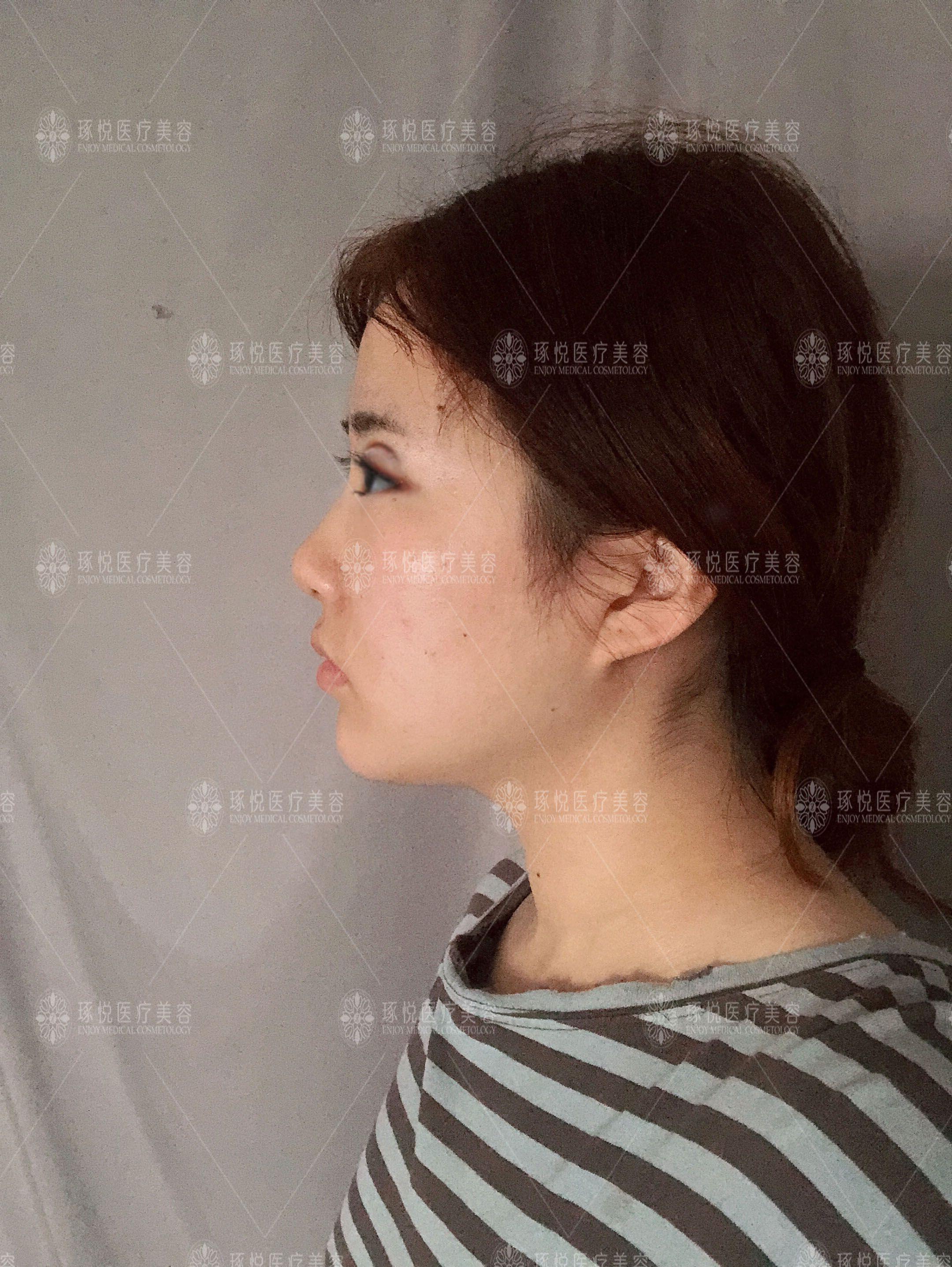 术中术后痛感真的很小很小,我因为体质的关系比较容易水肿,非常期待消肿之后的样子,我本身喜欢稍微宽点的双眼皮哦,所以让医生割的比较宽一些,这样就比较适合上妆呢,做完眼睛之后还想再弄下皮肤,最近总是熬夜对皮肤有点点不好,做完双眼皮之后我在恢复前会带个框架眼睛,这样就没什么啦