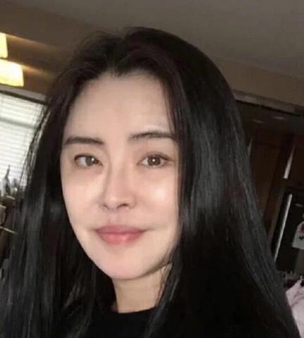 王祖贤早年输液照片意外曝光,网友大呼:生病了还这么美!  第2张