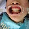牙齿瓷贴面