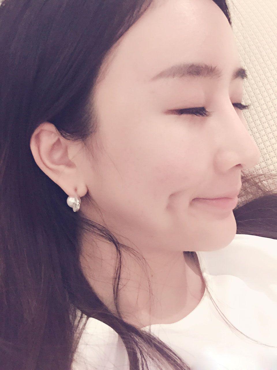 深圳富華  假體隆鼻 項目分類:鼻部整形 鼻部綜合