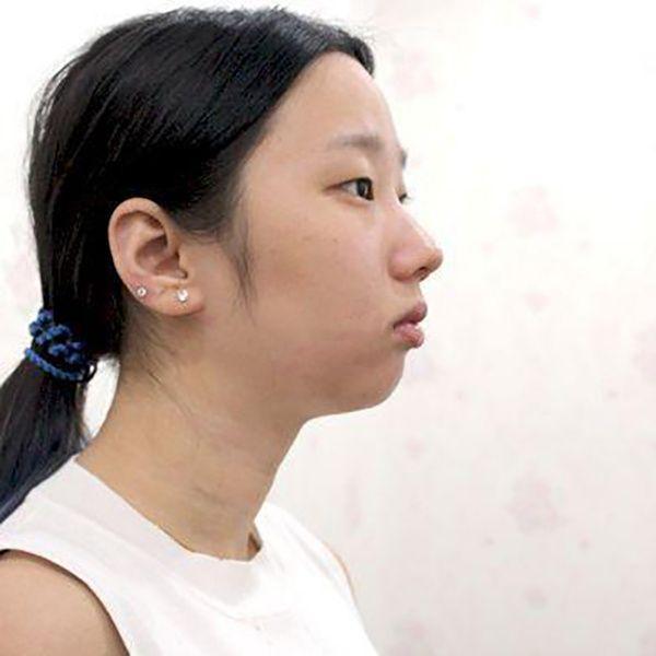 硅膠墊下巴 項目分類:面部輪廓 下巴 硅膠墊下巴