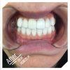 [术后1天] 不用多说!效果很满意!原本的烟渍牙全部被洗净了,牙齿美白到感觉会发光!