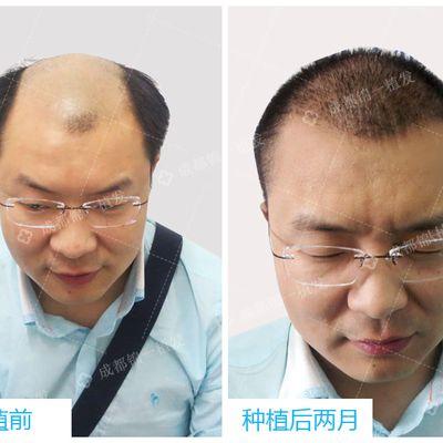 秃顶种植效果图
