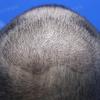 [术后11天]  种植的地方第7天的时候就消肿了,和前几天相比,种植头发和本身头发的颜色越来越相近了,现在看上去比前两天自然多了。     头发都变长了不少,种的头发应该基本上都成活了,发照片给医生看,也说恢复的很不错,就是后面取发的地方还有点痛,记得刚做完的那天晚上一点都不痛也不肿,第三天开始到第五天是肿着的,从第五天开始消肿,到第七天完全消肿。恢复的还是不错的
