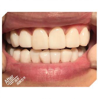 全口腔时代天使牙齿微矫正