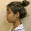 [术后1天] 焕星医疗美容自体脂肪填充全脸术前照片
