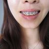 [术后134天] 从术前的照片就可以看出来,我的牙齿哟严重的外突情况!本来是要去做正颌,但是考虑到手术的创伤啊,费用啊很犹豫。偶然的机会来到医院做了牙齿矫正咨询,秦医生给我做了全景拍片,分析了一番以后觉得可以通过牙齿矫正来调整。我之后回去考虑了大概有大半个月的时间,中间医生也做过回访,帮我解决疑惑!最终下定决心来矫正。 矫正过程不能和大家说是愉快的,每次加力牙齿都会有些酸软。不过看到牙齿在一点一点改变,想到自己的坚持,会觉得自己真是棒棒的!