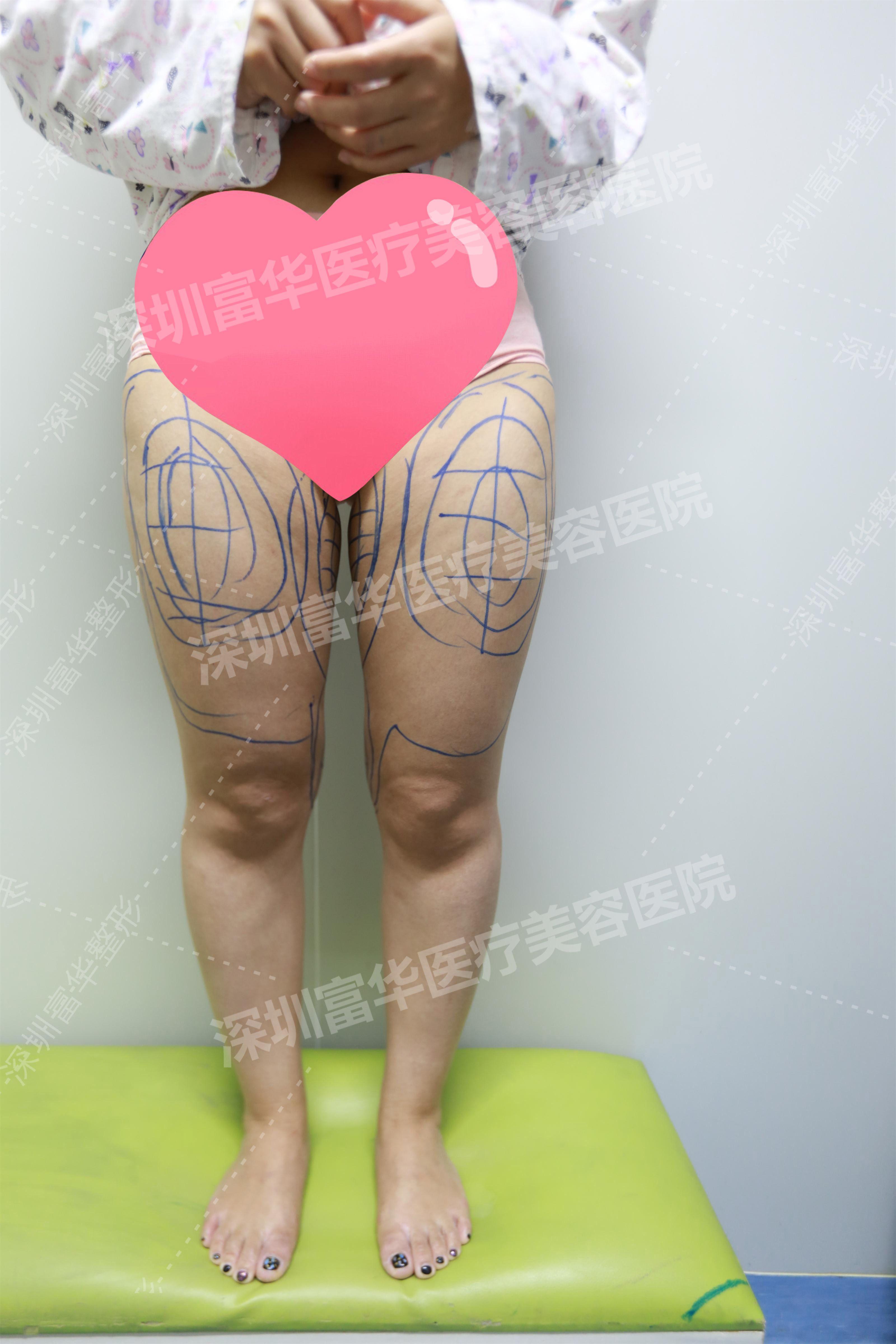 【吸脂】大腿環吸,大腿更精致 項目分類:美體塑形 吸脂