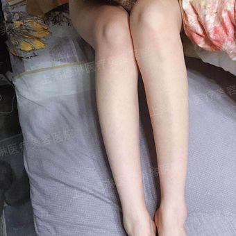 皮肤科医师李媛琪-瘦腿针