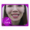 牙齿贴片美白就是这么让人自信灿烂笑。很多人说抹红色口红,牙齿就得时刻是洁白的,要不一笑就尴尬了,而我就不怕了!!!