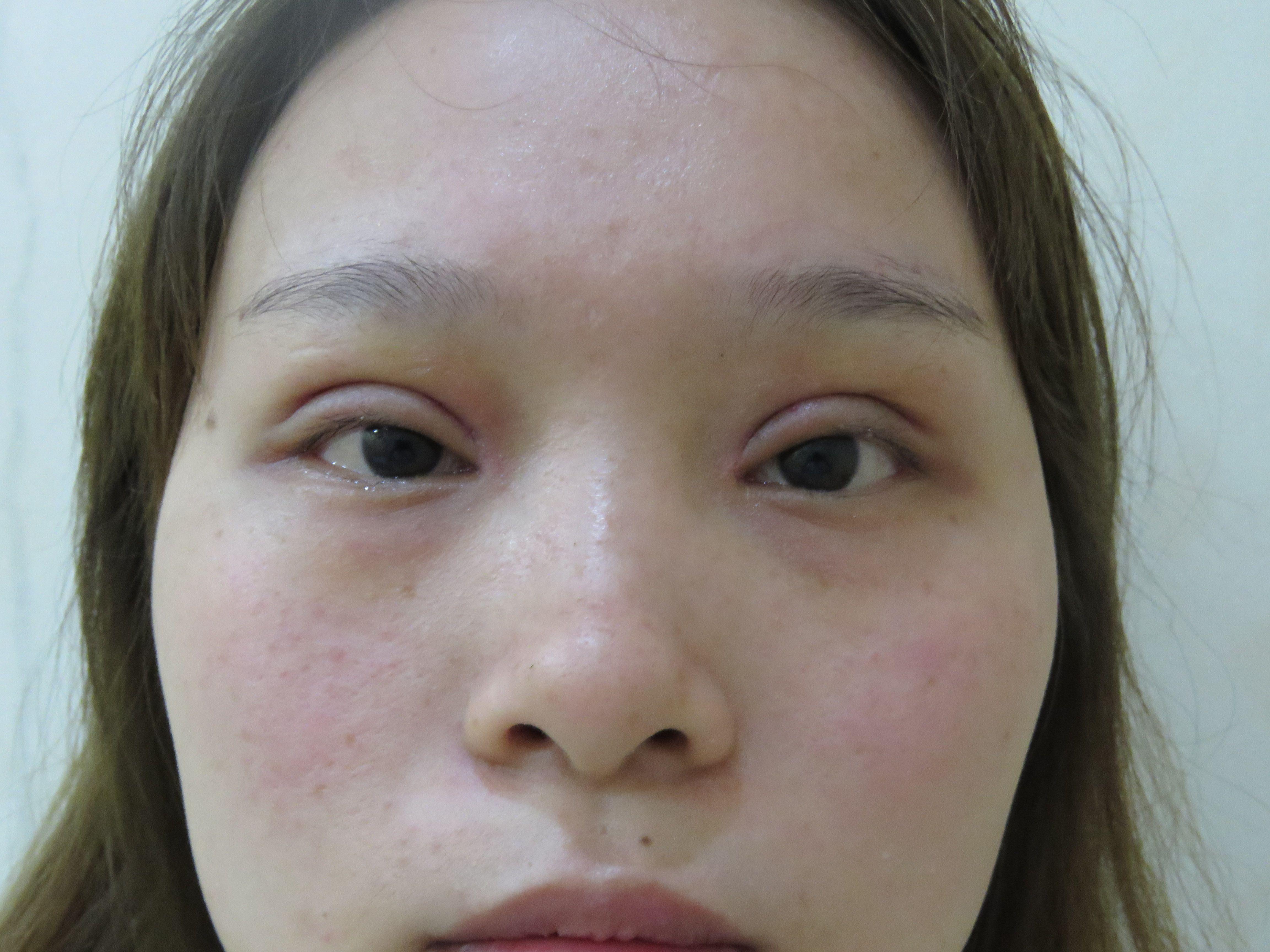 丝丝 项目分类:眼部整形 双眼皮 切开双眼皮