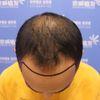 [术后1天] 选在11月20日做手术,周三,问了客服说用不了一天,次日上班不影响。原本是打算种个发际线,给头顶露头皮的地方做个加密,想着既然做了一次做个全套吧,种个眉毛吧,把该补的地方都补了。眉毛后面比较淡,比较杂。想着种完头发看着可能会不搭,就和医生说了想法,帮着自己设计一个合适的眉形。 种植的面积比较大,有些小血点,手术时麻药推得时候比较疼,然后就没事了。时间有点久,好几个小时,中间太无聊了就睡了一会,那天还在京城医院吃了顿饭。楼下的护士帮我打的。其实开始看着眉毛的框线还觉得可能会太粗,没想到种出来的效果很好。种下去的毛囊存活了,整齐的头发是我植发的目的,现在就是等待。