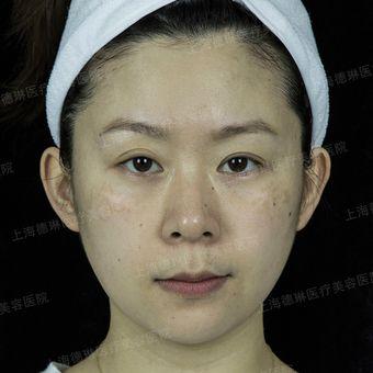 皮肤科医师李媛琪-CO2点痣
