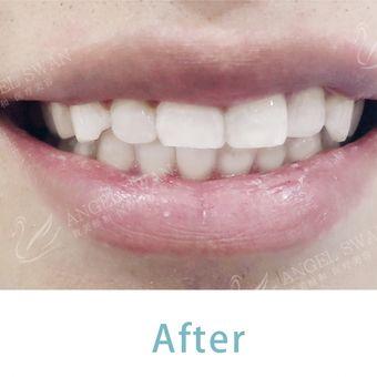 牙齿冷光美白-智美颜和