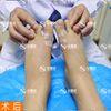 【大脚骨】:微孔祛大脚骨