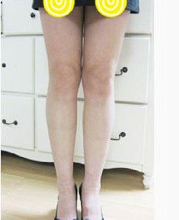 【瑞麗整形】腿部吸脂 項目分類:美體塑形 吸脂