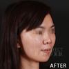 [术后300天] 术后10个月效果,可以看到求美者相比之前已经有较为大的改善