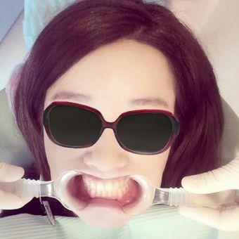 纽菲思牙齿冷光美白