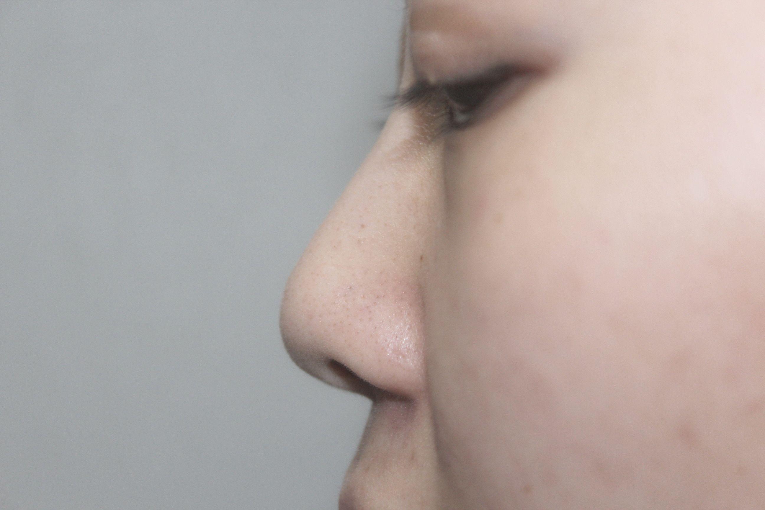 以前的鼻子比較坍塌,顯得臉非常寬大扁平,使整個臉缺乏立體精致的美感。看到別人的高顏值,自己羨慕不已。后來多方審查,確定了一家離我不是很遠的醫療機構(畢竟做完手術之后的臉還是蠻嚇人的,不想成為別人的焦點)。經過醫生的面診之后,指定了符合我心意的手術方案,之后就是一些檢查什么的。  好像手術大概做了兩個小時左右吧,做完之后感覺鼻子有點麻,想碰又不敢碰。術后好幾天鼻子都是比較腫的,記得比較清楚的就是術后一周的時候去拆線,醫生說不要沾水,在飲食上還要注意不要吃辣和刺激性的食物,每天熱敷驅散淤血等,并且要注意面部表情動作不要太大。醫生還說如果有任何不舒服的地方需要及時跟他溝通,真是個暖心的醫生。