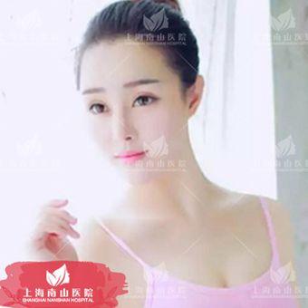 上海南山醫院玻尿酸墊下巴