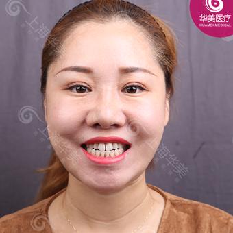 超薄贴面修复牙缝 美白牙齿