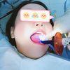 [术后1天] 我的牙齿不算太差,除了有一点凸以为,还是挺整齐的。但!!!从小喜欢吃甜食的我,确未能躲过蛀牙,以至于经常喊牙疼。因为蛀牙是大牙,虽然烂的位置不大,但经常吃东西都会有残留物,有时候就算漱口、刷牙,死角位置都还是弄不干净。以前都没有太在意,这次也是因为上个月,因为这颗蛀牙让我的半边脸肿了一周,把我折磨得不像人样。所以下定决心无论如何都要把这个蛀牙给解决了。原以为补牙会很痛,没想还好。医生先给我做了口腔检查,还教我自己如何护理,然后才开始的补牙。看着医生得心应手的样子,我算是放心了。补牙过程中,除了嘴巴张合有点难受,补牙的时候没什么感觉~
