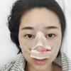 [鼻综合]韩式小翘鼻