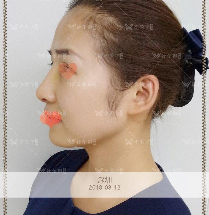 全鼻美塑 项目分类:鼻部整形 鼻部综合