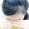"""[术后35天] 不知不觉种完头发已经一个月了,很多朋友都会再见面的时候先查看一下我的头发,然后点点头""""嗯,长得不错~""""种植区平时完全无感,用手指压一压,能够感觉到肿,取发区有时会痒痒,我会像挠正常头皮一样挠,一切正常。"""