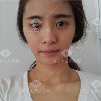 自体脂肪填充+眼鼻综合手术