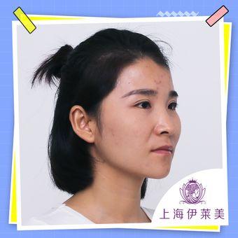 伊莱美韩式生科三段鼻综合