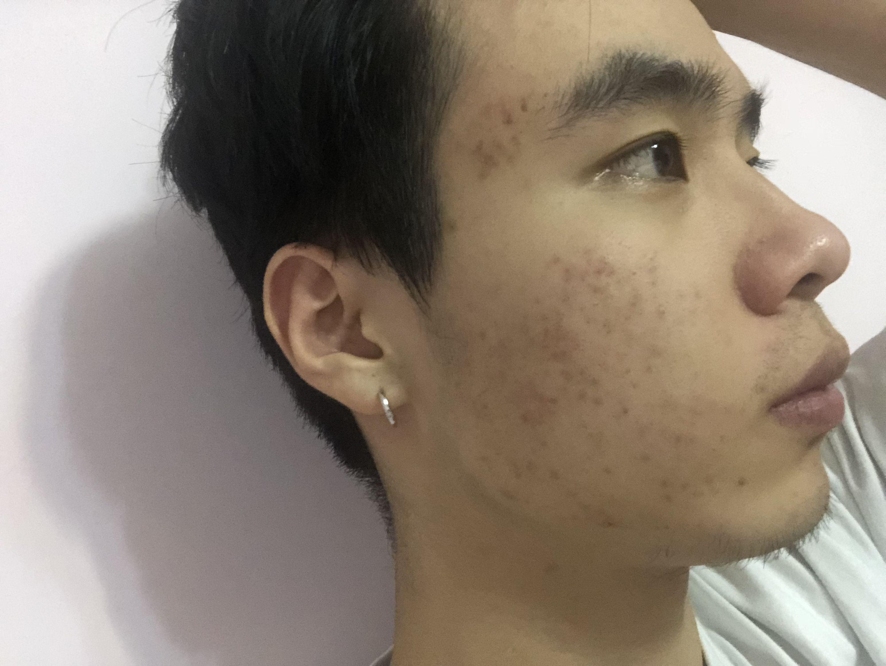 臉上的痘痘都是之前不注意保養造成的,男孩子好像都是不在意自己的臉,但是真的長滿痘痘的時候想哭的心都有了,女孩子還能靠化妝來蓋一蓋,對我來說沒點用。 上次做了第二次治療現在的痘痘已經沒有了,只留下了痘印,關于長痘的痛苦我已經不想再提,心很累,這次留下的痘印醫生說微針治療效果很好的,微針可以不破壞皮膚表皮層,提升肌膚的再生功能。 剛做完幾天是有一點結痂的,還好這幾天已經掉完了,千萬不要扣!另外微針其實是有點疼的,但是相信為了解決問題這點疼是能接受的,希望大家勇敢面對~