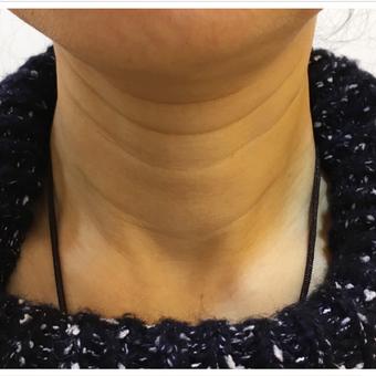 【微针】祛除颈纹