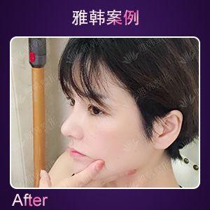 鼻综合 项目分类:鼻部整形 鼻部综合