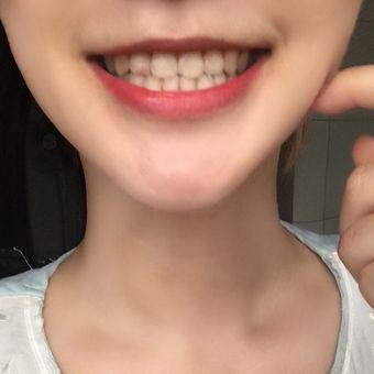 首尔丽格牙齿美白贴面