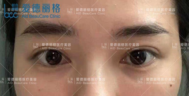 刘志刚重睑修复术 项目分类:眼部整形 眼部修复