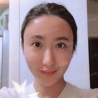 皮肤科医师李媛琪-保妥瘦脸针