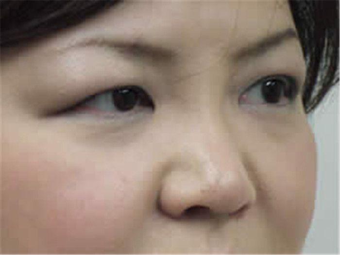 術前照片,眼袋問題困擾很久,兩個眼袋讓患者好幾歲。